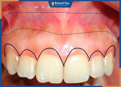 Phẫu thuật chữa cười hở lợi do xương
