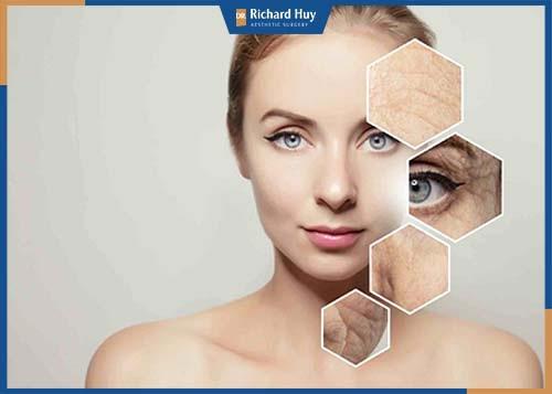 Đối tượng phù hợp với tiêm Botox