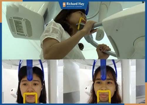 Tiến hành kiểm tra cấu trúc xương bằng thiết bị công nghệ cao