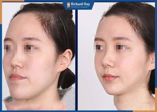 Gương mặt được hài hòa,  vầng trán được hạ thấp và cân đối với gương mặt