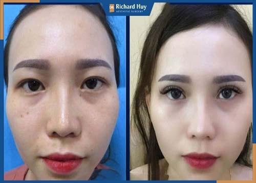 Đôi mắt được tạo 2 mí sắc nét sau phẫu thuật cắt mắt cùng Dr. Richard Huy