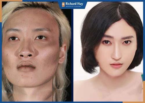 Vầng trán sau phẫu thuật được cân đối với tỷ lệ gương mặt