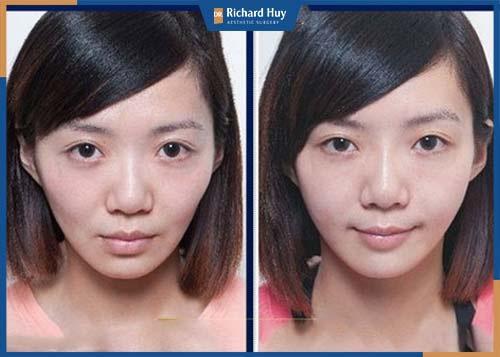 Sau khi nâng gò má, gương mặt trở nên tươi tắn và trẻ trung hơn