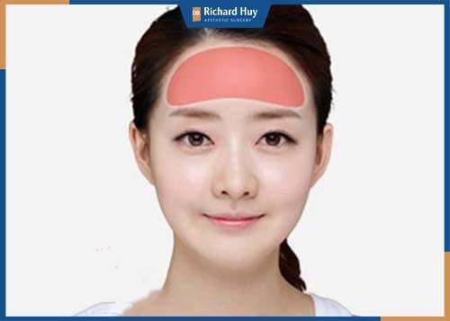 Phương pháp được thực hiện bằng cách đưa chất liệu để làm đầy vùng trán bị thấp, lõm không cân xứng với tỷ lệ gương mặt