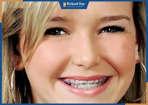 Móm duyên, móm nhẹ có thể niềng răng để cải thiện giúp gương mặt được cân đối hơn