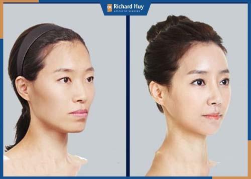 """Gương mặt """"Baby"""" hơn sau khi phẫu thuật"""