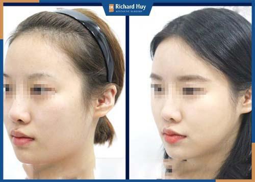 Hình ảnh khách hàng sau 1 tháng phẫu thuật