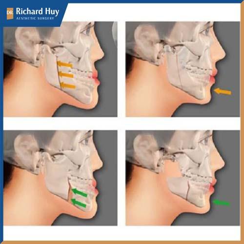 Kỹ thuật tác động vào xương yêu cầu cao về kỹ thuật và công nghệ sử dụng