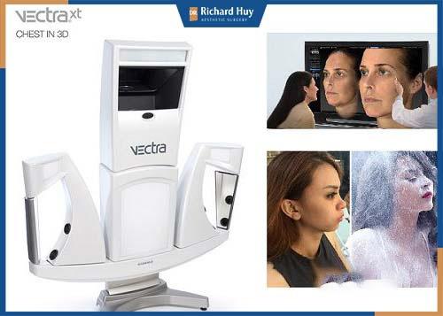 Hỗ trợ máy Vectra 3D mô phỏng kết quả sau phẫu thuật