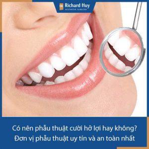 Có nên phẫu thuật cười hở lợi hay không? Đơn vị phẫu thuật uy tín và an toàn