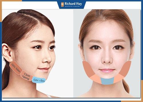 Phẫu thuật khuôn mặt lưỡi cày