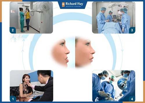 Quy trình phẫu thuật hàm móm