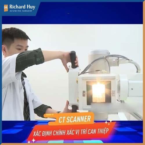 Sử dụng công nghệ CT Scanner hỗ trợ quá trình phẫu thuật gọt trán