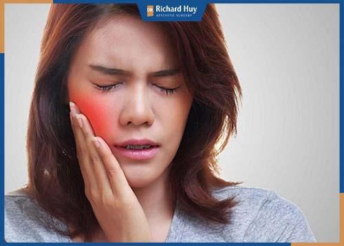 Biểu hiện này chủ yếu do kỹ thuật của bác sĩ, khi tiêm không may tác động tới các mao mạch máu dưới da mặt