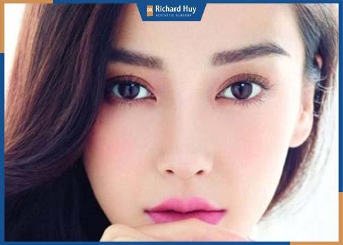 Cắt mí mắt giúp đôi mắt to trò tự nhiên, hấp dẫn