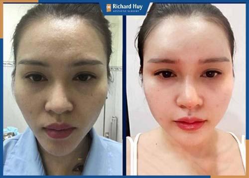 Cải thiện rõ rệt đường nét trên gương mặt, khắc phục triệt để tình trạng trán lõm, trán thấp.