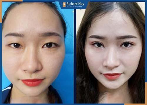 Gọt trán được xem là kỹ thuật được nhiều người lựa chọn để giải quyết dứt điểm trán quá cao và bất cân xứng trên gương mặt.