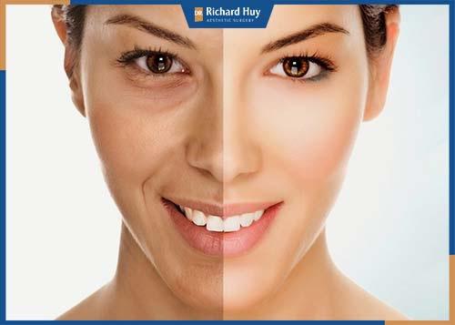 Gương mặt được trẻ hóa toàn diện, cơ mặt được thả lỏng, tăng khả năng đàn hồi trên da.