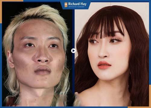 Gương mặt sau phẫu thuật được tự nhiên, xương gò má được hạ thấp không còn lộ rõ