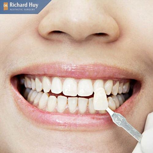 Bọc răng sứ giúp cải thiện móm miệng