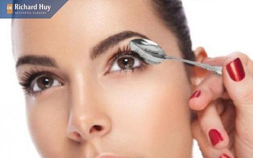 Sử dụng thìa để làm mặt Vline ở mắt