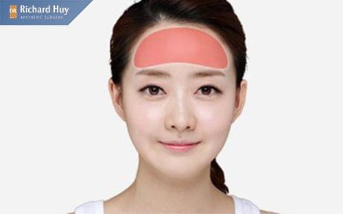 Gọt trán khắc phục khuyết điểm cho khuân mặt đẹp