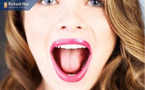 Bài tập mở to miệng giúp tạo mặt V-Line