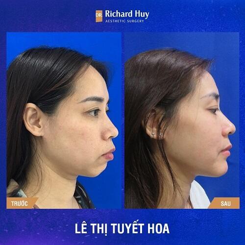 Hình ảnh trước sau quả phẫu thuật chỉnh hình hàm móm