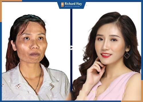 Hình ảnh khách hàng thay đổi diện mạo gò má cao sau khi phẫu thuật tại Dr. Richard Huy