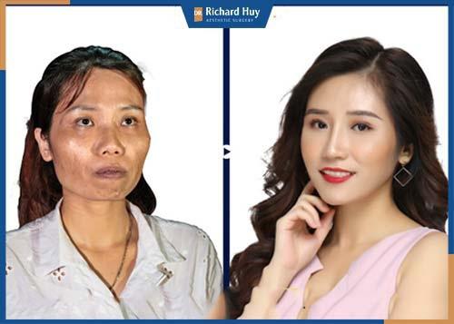 Đường nét gương mặt được thay đổi hoàn toàn sau phẫu thuật