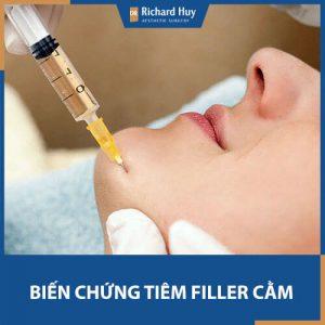 Biến chứng thường gặp khi tiêm Filler cằm và cách phòng tránh hiệu quả