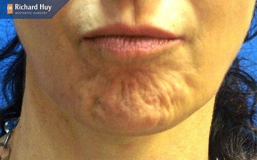 Sau khi tiêm Filler xẩy ra tình trạng lão hóa nhanh ở da