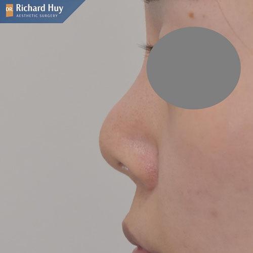 Sửa mũi bọc sụn còn có thể gây co rút sụn