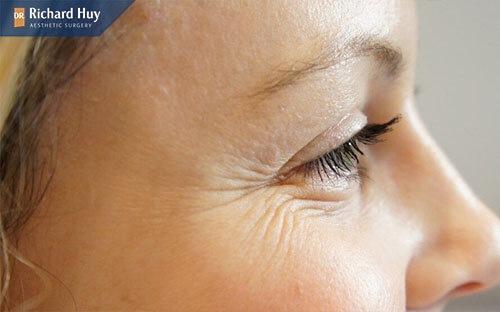 Nên tái tạo da với da bị lão hóa xuất hiện nhiều nếp nhăn, vết chân chim