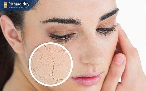 Nguyên nhân chủ yếu khiến da mặt bị mỏng là lão hóa
