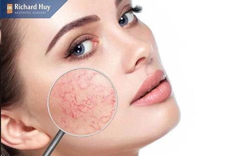 Da mặt mỏng sẽ nổi những mạch máu nhỏ li ti