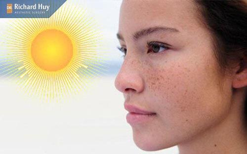 Tác động của môi trường, ánh nắng mặt trời cũng khiến da mặt bị mỏng