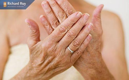 Cơ thể thiếu nước khiến cho da tay trở nên nhăn nheo thiếu sức sống