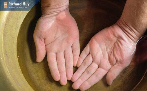 Ngâm nước lâu da tay suất hiện tình trạng nhăn nheo