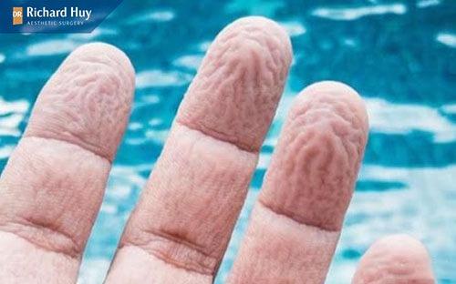 Da tay nhăn còn giúp thoát được lượng nước thừa