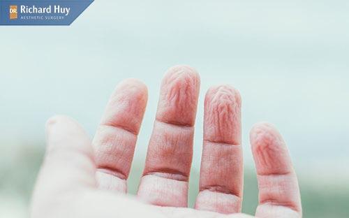 Da tay nhăn khi gặp nước là tình trạng bình thường không nguy hiểm