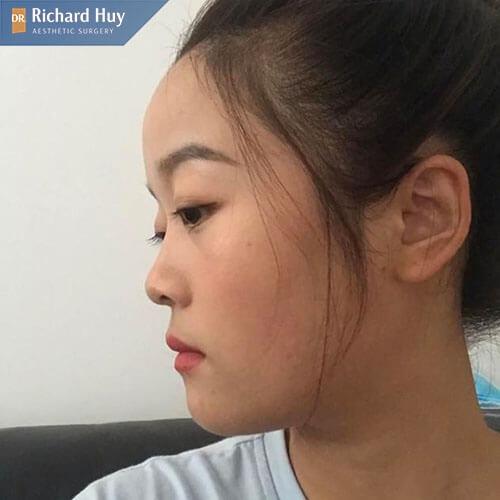 Đặc điểm nhận dạng của mũi tẹt