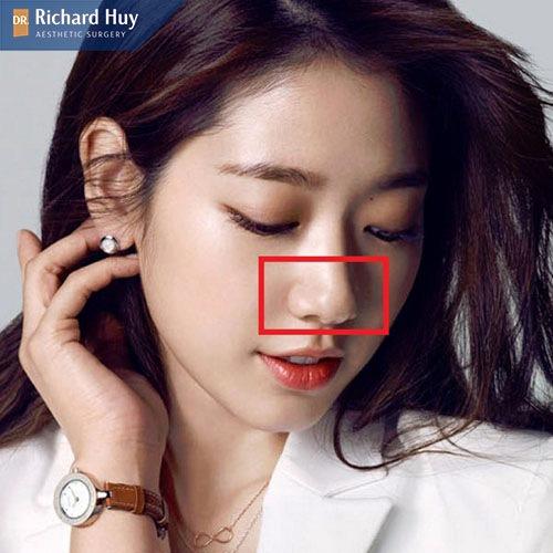 Mũi chẻ là một đặc điểm bẩm sinh có trên gương mặt