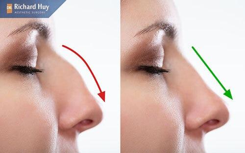 Nâng mũi L line phù hợp với đa dạng đối tượng có dáng mũi sấu