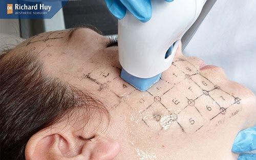 Người có độ tuổi 25 trở lên và da đã bắt đầu có những dấu hiệu của lão hóa