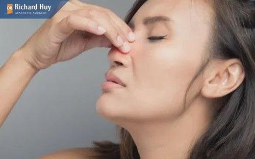 Nâng mũi bọc sụn còn có thể gây nghẹt mũi