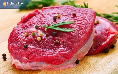 Sau nâng mũi không nên ăn thịt bò vì có thể gây sẹo