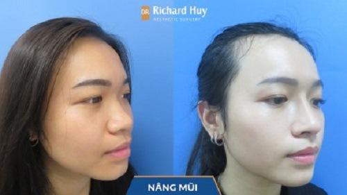Kết quả đạt được khi thực hiện nâng mũi cùng Dr. Richard Huy