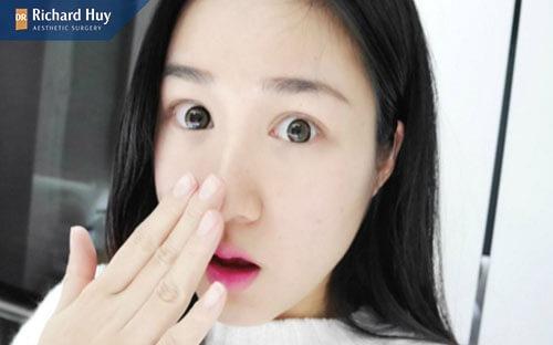 Sau khi nâng mũi SLine không sờ nắn động chạm mạnh vào vết thương
