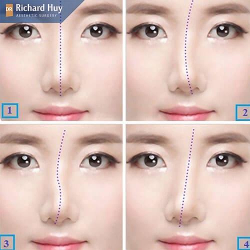 Các dáng mũi lệch thường gặp nhất